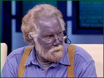 Blåfärgning av huden, efter användande av kolloidalt silver